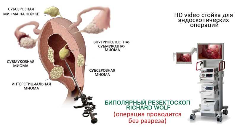 Видео Операций На Половых Органах