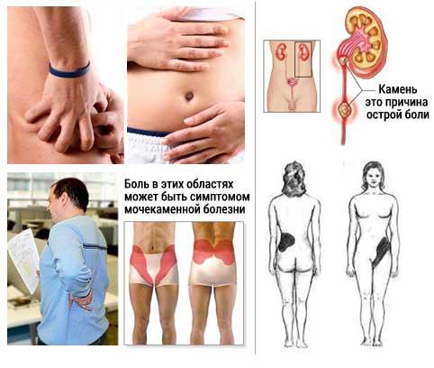 Симптомы почечной колики